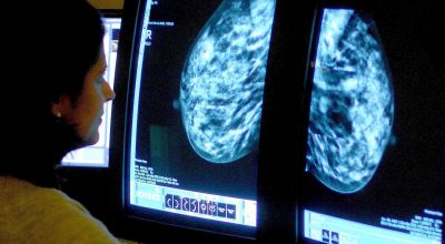 'Special' immune cells offer hope for triple negative breast cancer patients