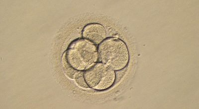 Freezing embryos has no impact on IVF success rate, study concludes