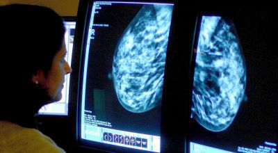 AI shows promise in telling types of breast cancer apart
