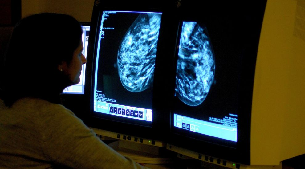 New Study Suggests Treatment >> Genetic Test Can Help Doctors Decide On Breast Cancer Treatment