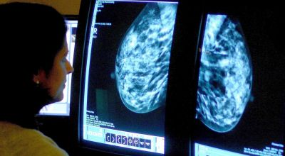 Breast cancer screening could be tailored to match individual risk – study