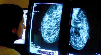 Magnetised molecules used to monitor breast cancer
